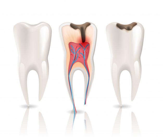 esmalte-caries-infeccion-salud-diente_81522-103
