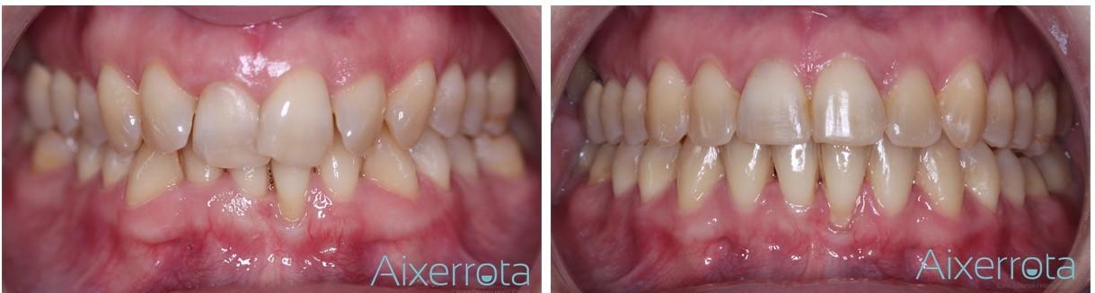 Gracias a la ortodoncia podemos conseguir que tus dientes estén alineados y que luzcas una bonita sonrisa