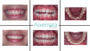 Gracias a la ortodoncia conseguimos alinear los dientes y proporcionamos una sonrisa armónica y bonita. Al finalizar el tratamiento colocamos una barrita de retención por detrás de los incisivos inferiores para que no se vuelvan a mover.